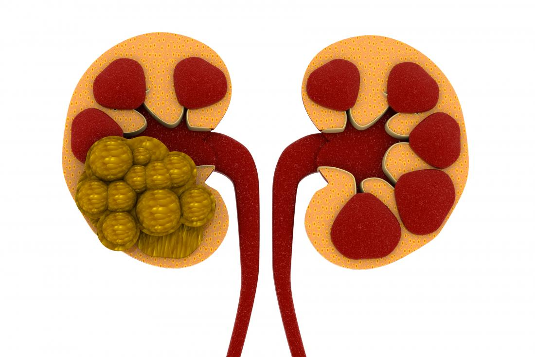 image of kidney stones from energy drinks