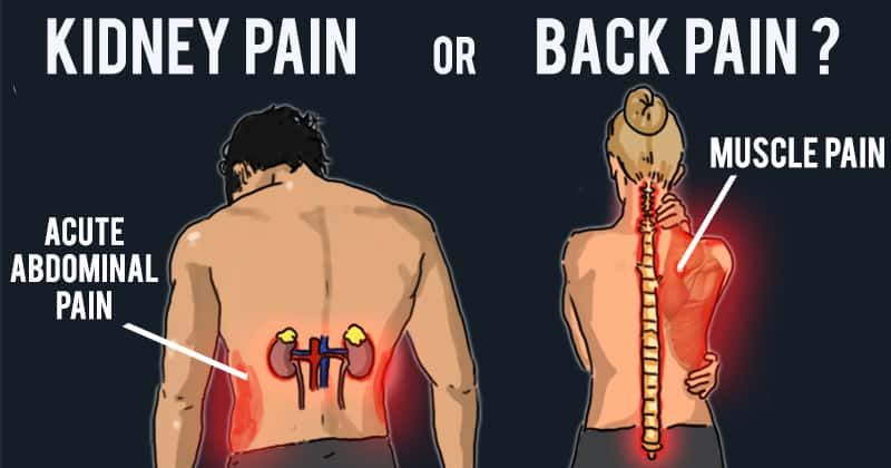 picture of kidney back pain