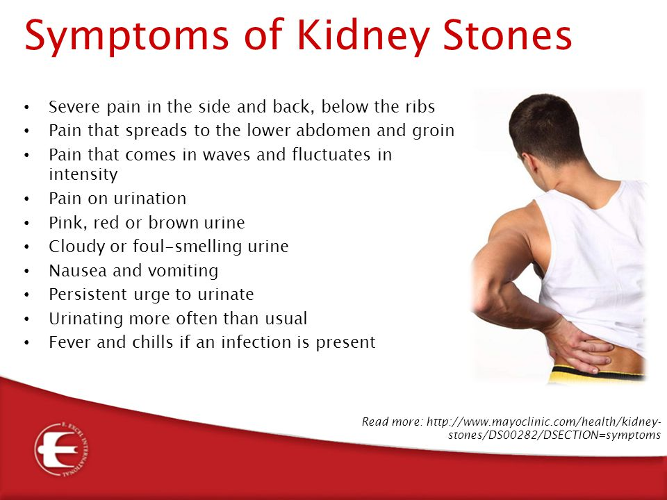 pictures of kidney stone pain
